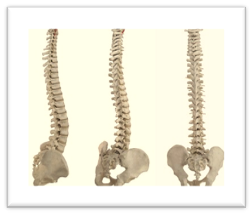 spinal_disc.png